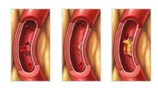 verhoogd cholesterol meting