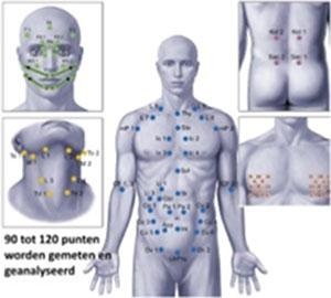 regulatiethermografie